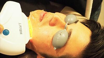 フィーゴの顔施術
